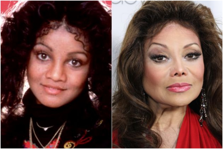 25 Once Beautiful Celebs With Horrible Plastic Surgery Jobs