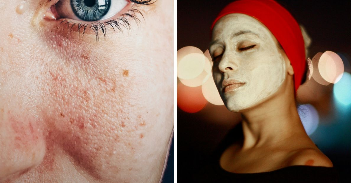 try-this-powerful-and-simple-face-mask-for-scars-and-dark-spots