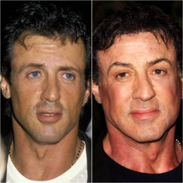 50 Famous Men Who Have Done Plastic Surgery