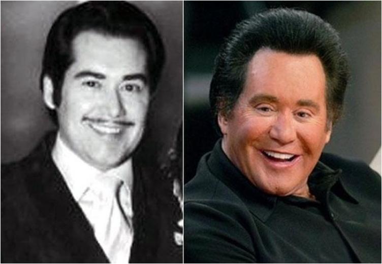 50 Famous Men Who Have Done Plastic Surgery