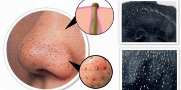 how-to-get-rid-of-blackheads-masks