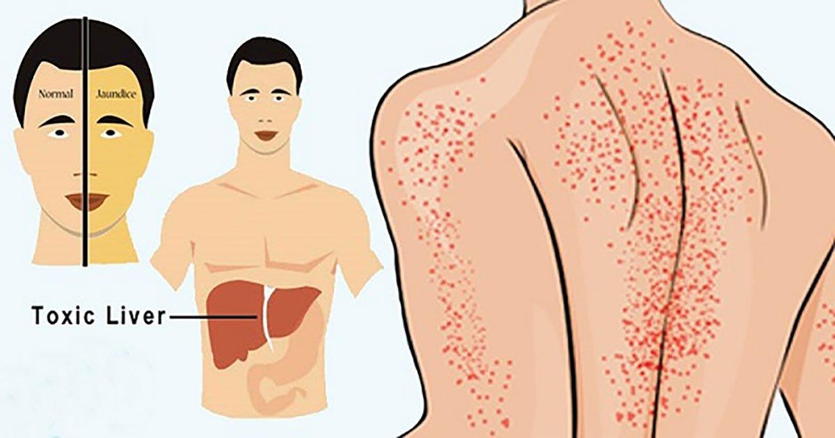 Signs of Liver damage