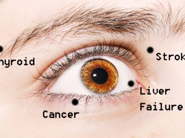 Warning signs your eyes sending you