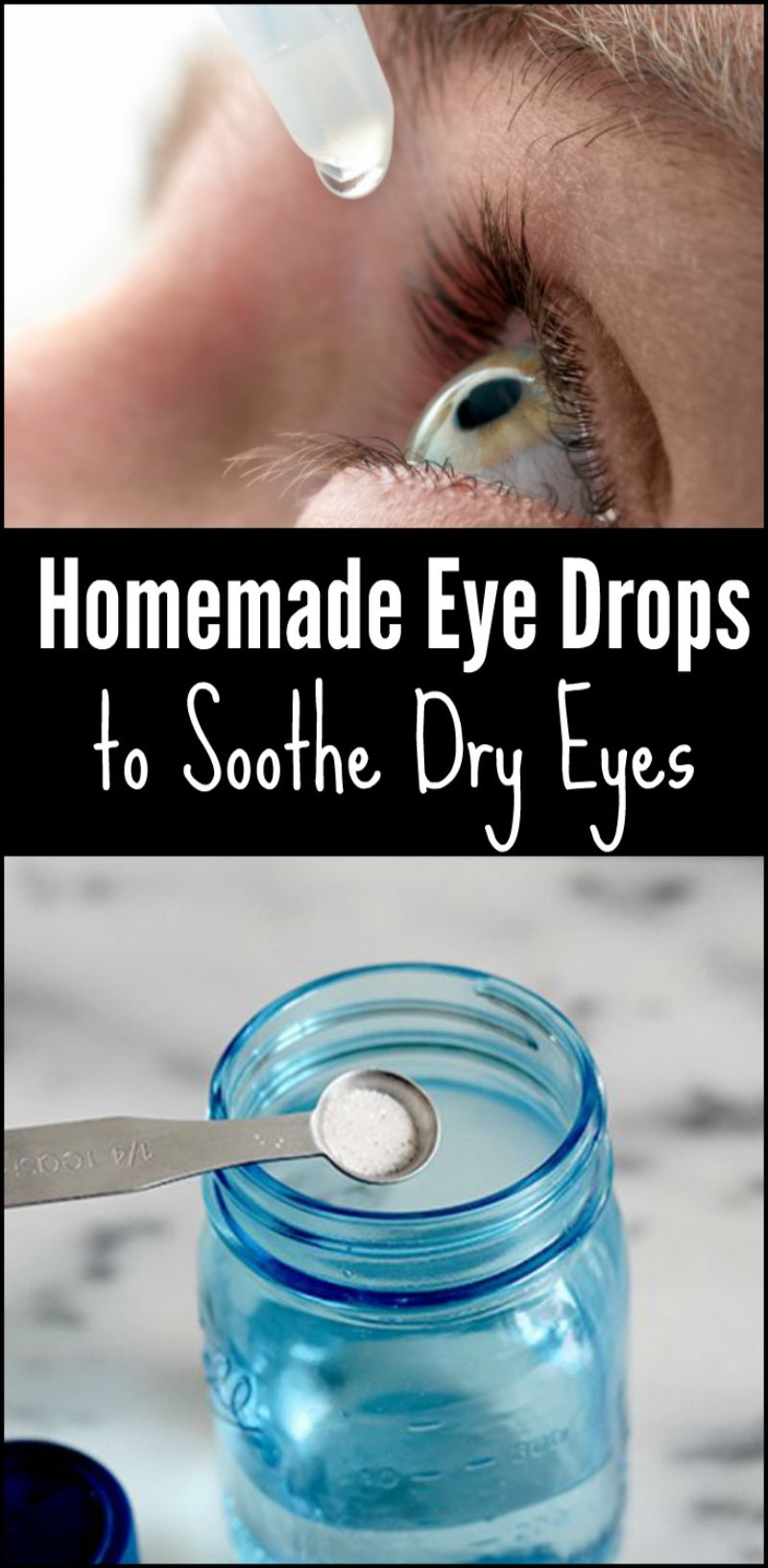 Homemade Eye Drops to Soothe Dry Eyes