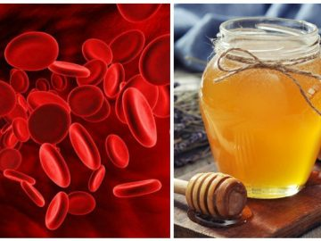 Honey remedies for anemia