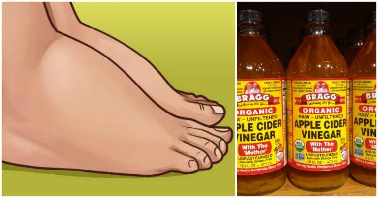 Swollen Feet Remedy