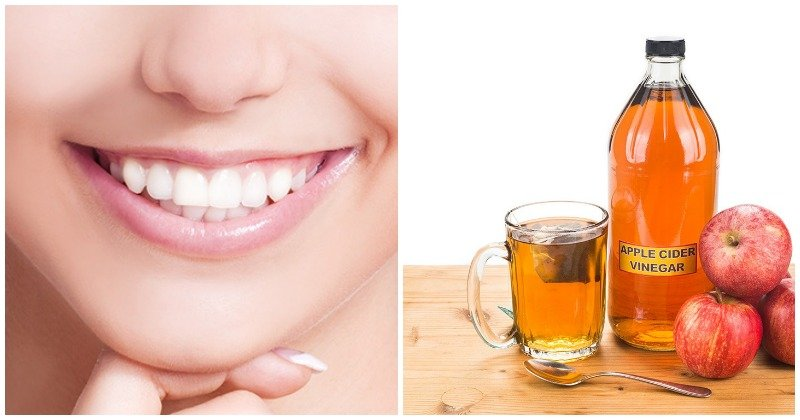 Gingivitis and Tartar Problems? These Vinegar Remedies Can Help!
