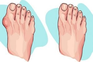 Reduce bunion size naturally