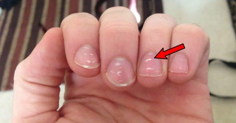 White spots on nails