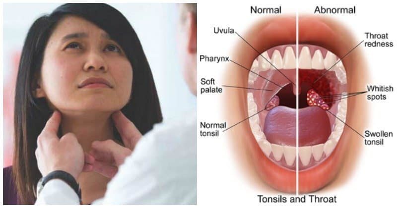 Tonsilitis From Oral Sex