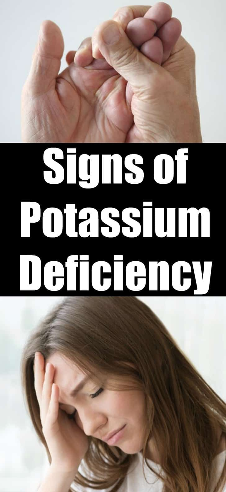 7 Signs of Potassium Deficiency You Should Not Ignore!