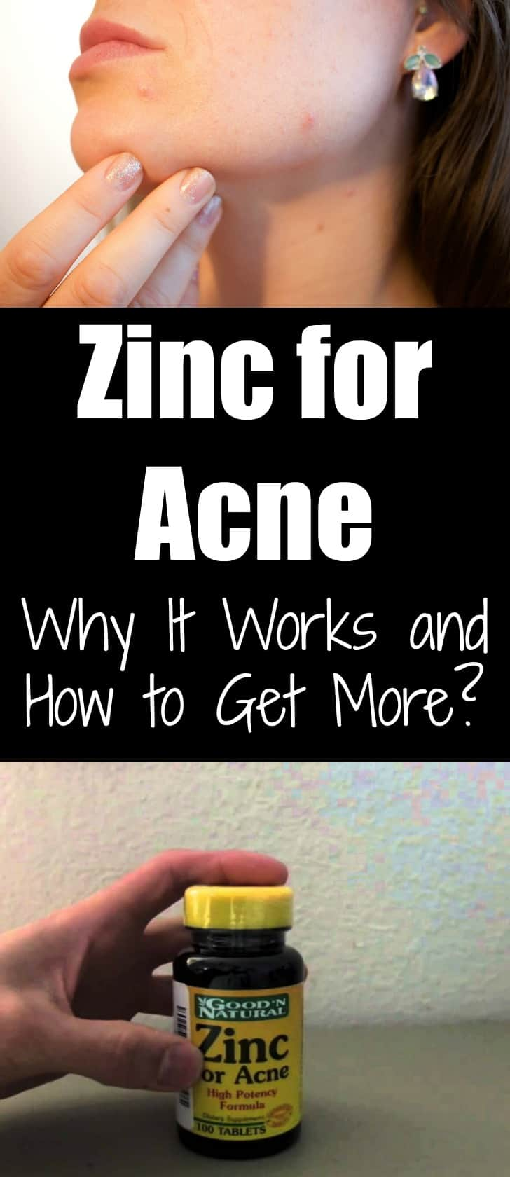 Zinc for Acne: Why It Works and How to Get More?