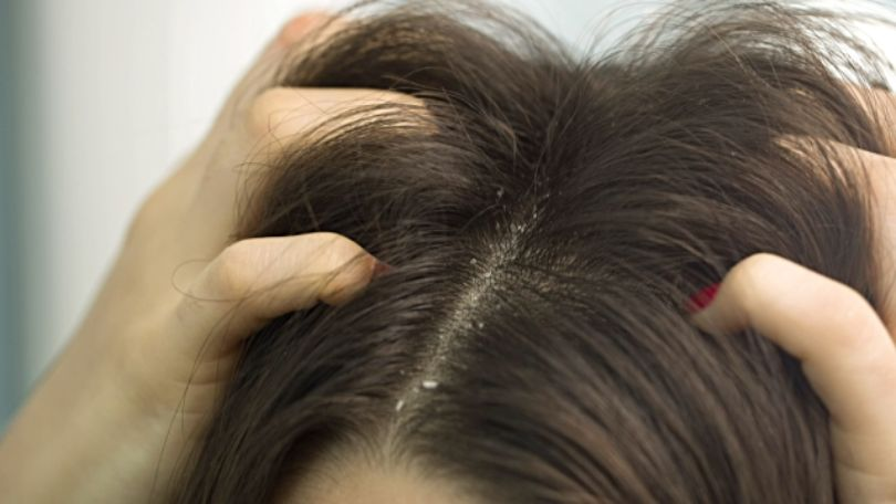 Apple Cider Vinegar Dandruff Treatment