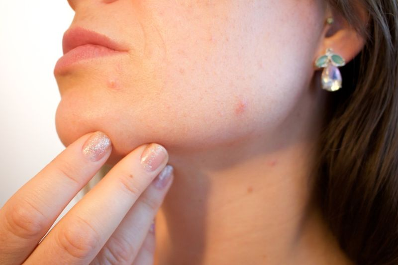 How to Unclog Pores – Top 9 Home Remedies