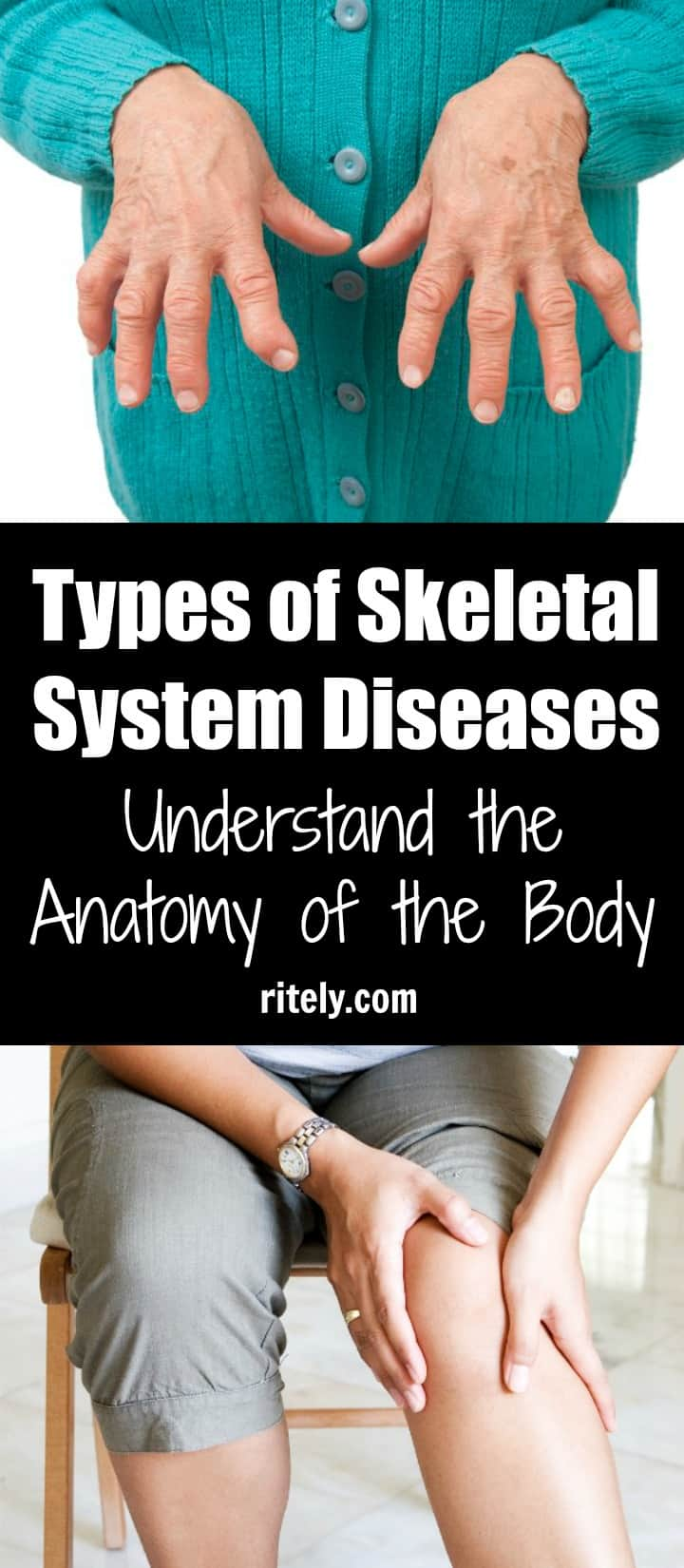 Types of Skeletal System Diseases – Understand the Anatomy of the Body
