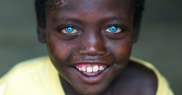https://ritely.com/13-of-the-worlds-most-magnificent-eyes-belong-to-these-children/
