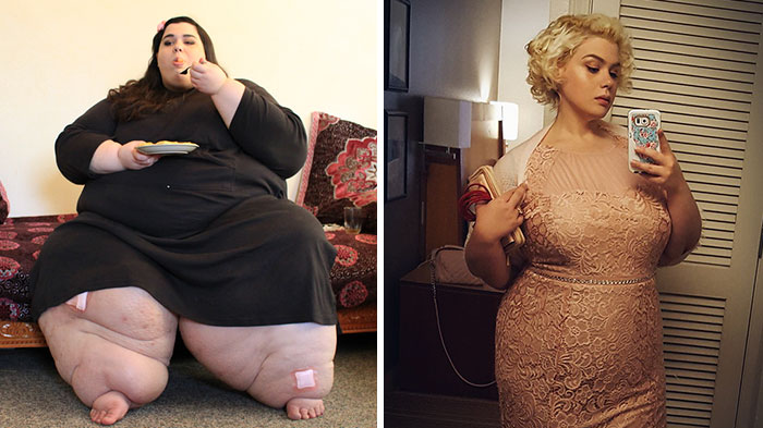 24 Before And After Photos From My 600 Lb Life That Will Make You Regret Regarding Yourself Fat