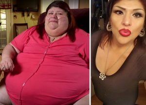 24 Before and After Photos from 'My 600 lb.-Life' that Will Make You Regret Regarding Yourself Fat