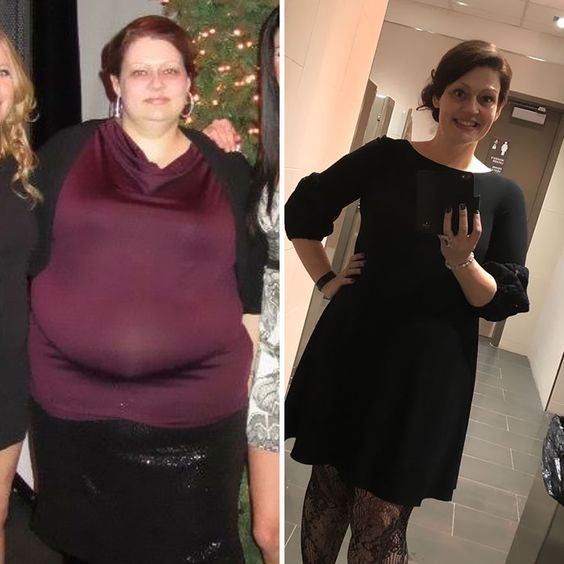 Success Story: How can You Lose 150 Pounds in 2 Years