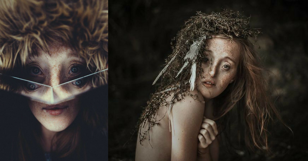 26-Year-Old Model With Rare Facial Defect is Breaking the Standards of Beauty