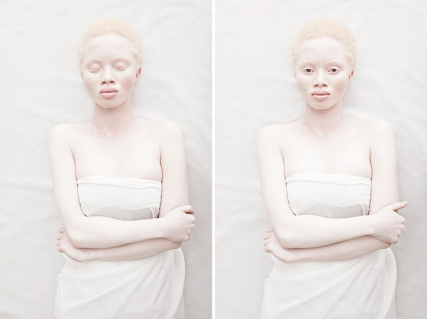 Looking at These 20 Photos of Beautiful Albino People will Hypnotize You