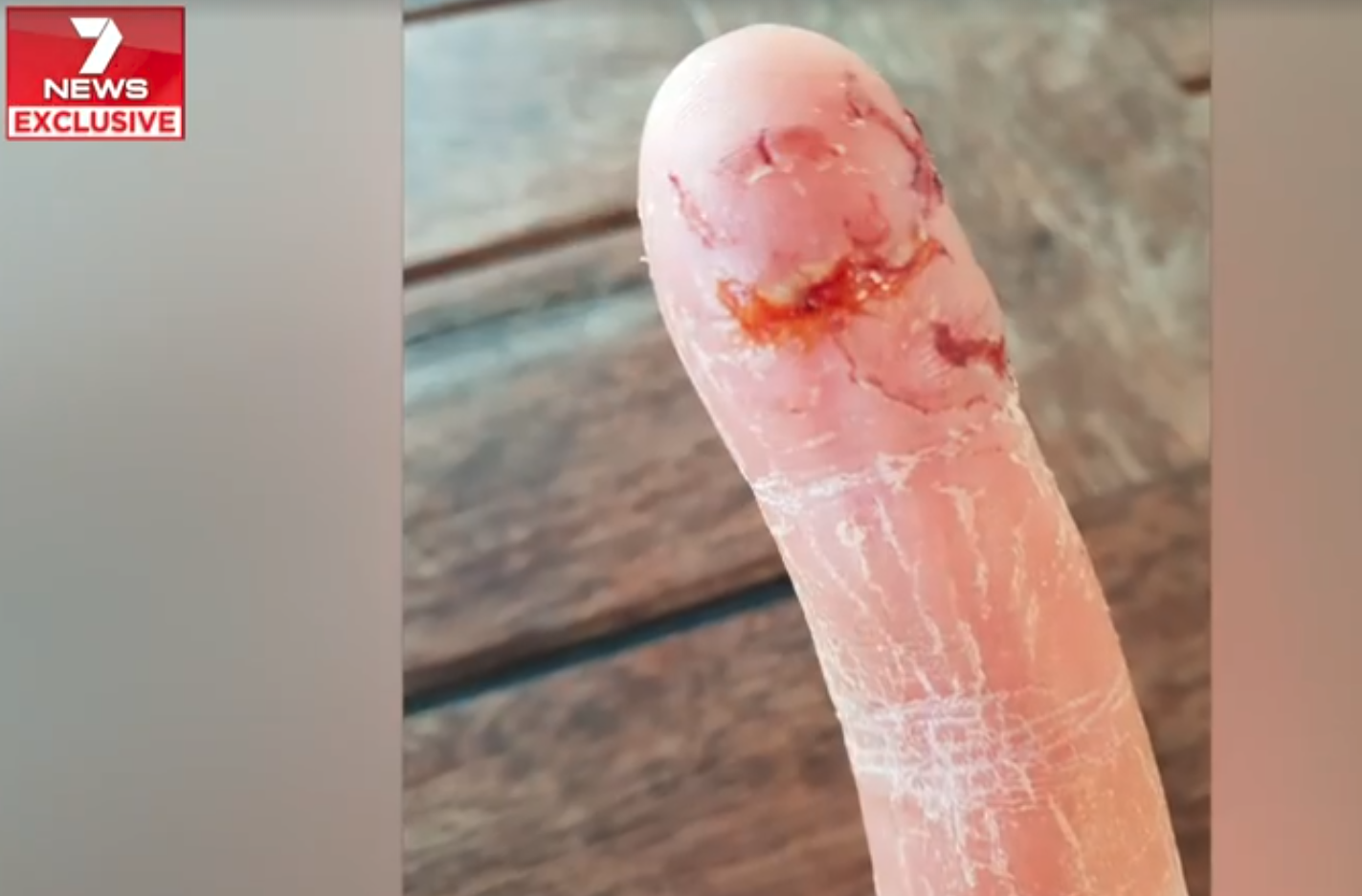 Australian Woman Tries to Feed Shark, But It Was Too Close That Its Teeth Sunk Into Her Finger
